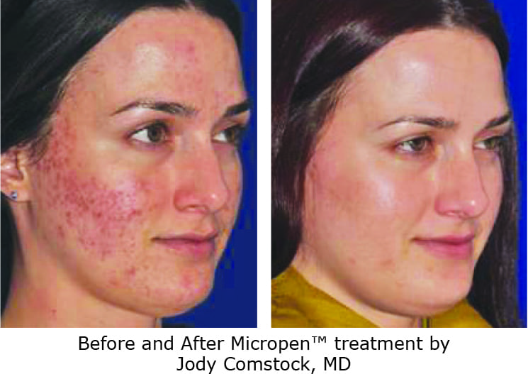 Eclipse Microneedling Before and After Photo for Acne