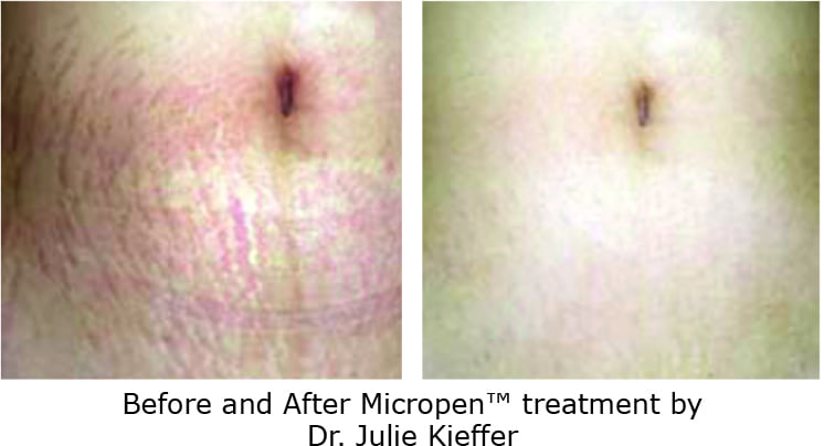 Eclipse Microneedling Before and After Photo for Stretch Marks