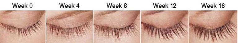 Latisse Eye Lash Treatment | Advanced Aesthetics Medical Spa