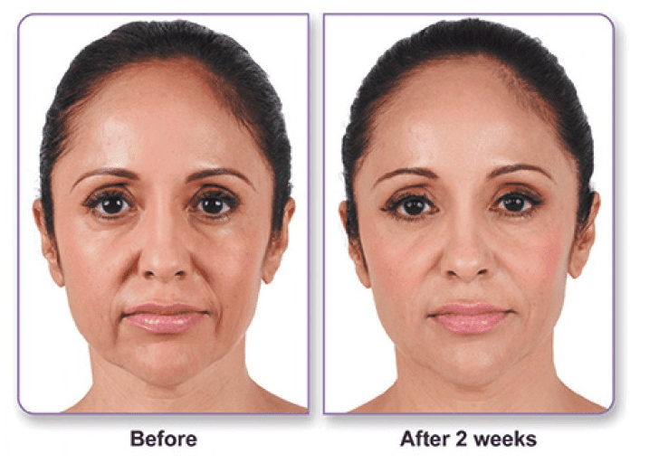 Liquid Lift Before and After Photo of Female Patient