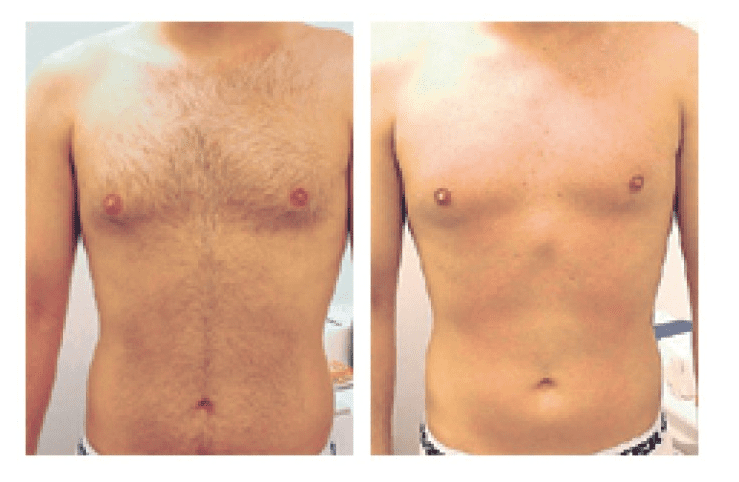 Laser Hair Removal Before and After of Male Patient's Torso