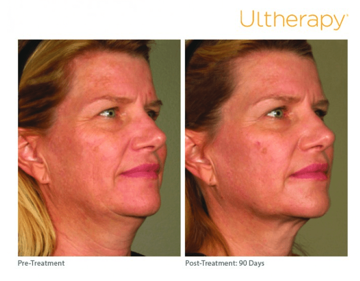 Ultherapy Before and After Photo of Female Patient