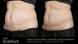 fat-removal-process-300x169
