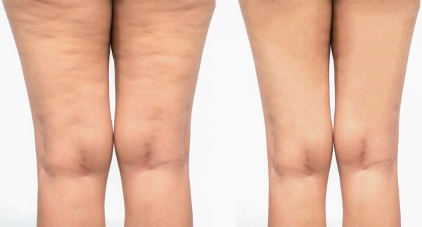 Tempsure Envi Before and After Photo of the Back of the Legs