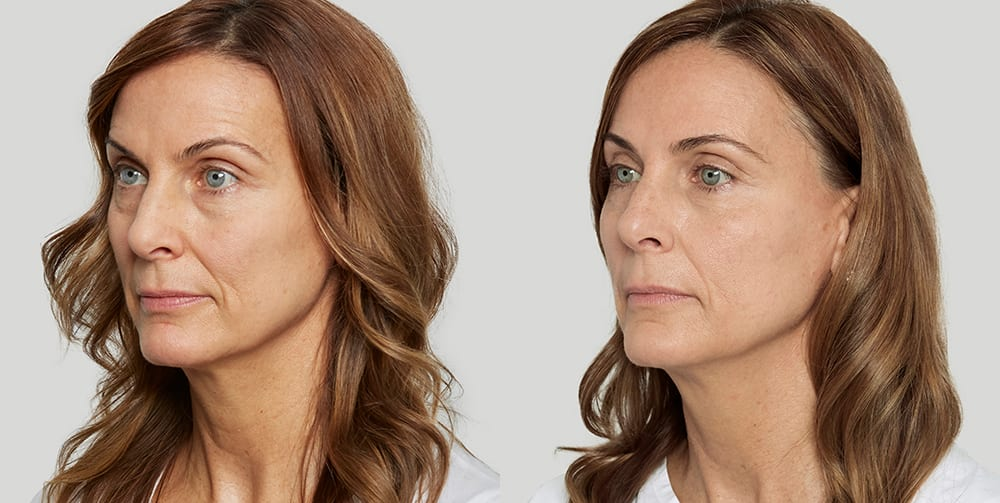 Sculptra Before and After Photo of Female Patient